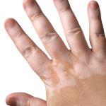 Pigmenthiányos állapot, a vitiligo kezelésére az ACM Laboratórium kifejlesztette a Vitix gélt és Vitix tablettát, a pigmenthiányos területek elfedésére pedig a Viticolor gélt.